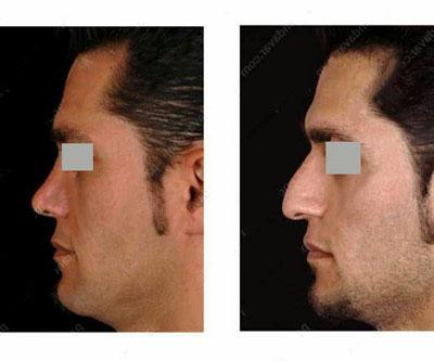 نمونه کار جراحی بینی دکتر پرندآور1