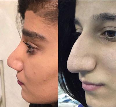 نمونه کار دکتر علیرضا بختیاری1