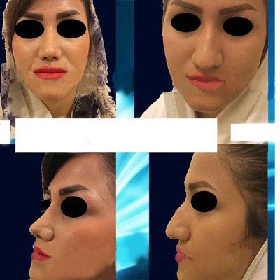 نمونه کار جراحی بینی دکتر ارزاقی1