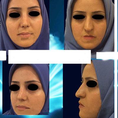 نمونه کار جراحی بینی دکتر ارزاقی2