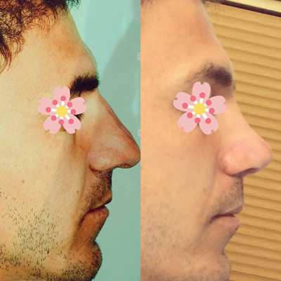 نمونه کار جراحی بینی دکتر عزیزی4