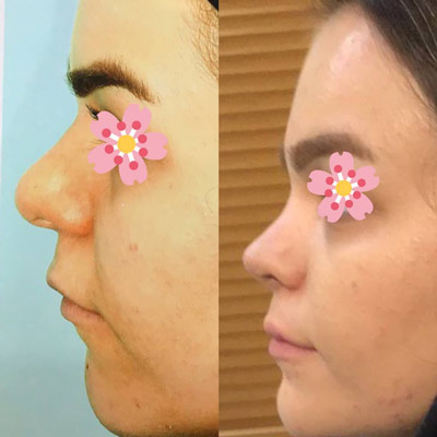 نمونه کار جراحی بینی دکتر عزیزی1
