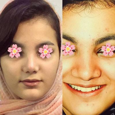 نمونه کار جراحی بینی دکتر عزیزی2