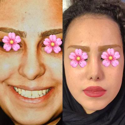 نمونه کار جراحی بینی دکتر عزیزی3