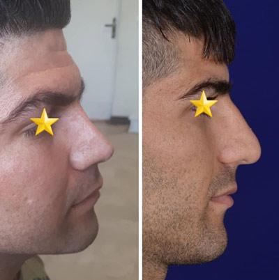 نمونه کار جراحی بینی دکتر دولتی4