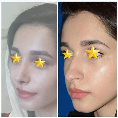 نمونه کار جراحی بینی دکتر دولتی1