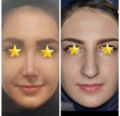نمونه کار جراحی بینی دکتر دولتی2