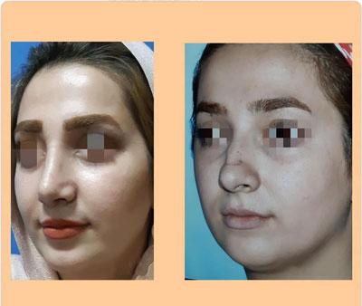نمونه کار جراحی بینی دکتر ضیا1