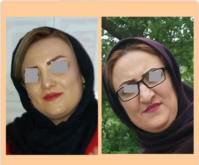 نمونه کار جراحی بینی دکتر ضیا2