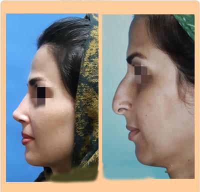 نمونه کار جراحی بینی دکتر ضیا3