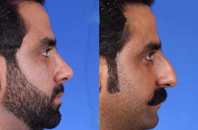 بهترین جراح بینی در اصفهان