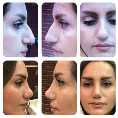 نمونه کار جراحی بینی دکتر ترابی1