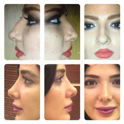 نمونه کار جراحی بینی دکتر ترابی3