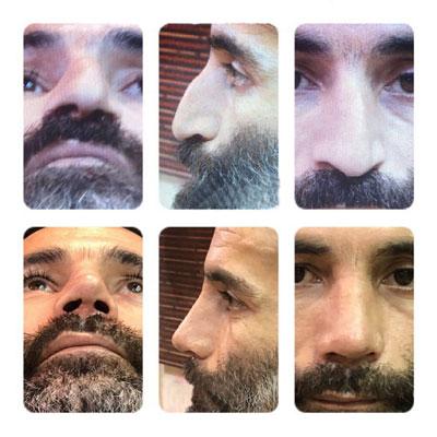 نمونه کار جراحی بینی دکتر ترابی4