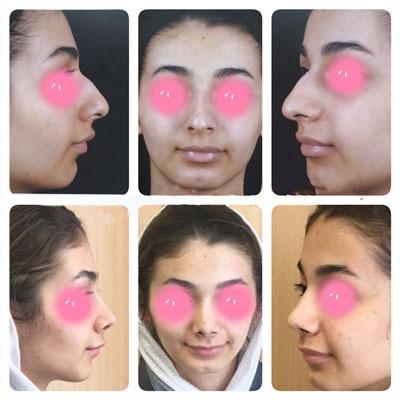 نمونه کار جراحی بینی دکتر اکبرپور1