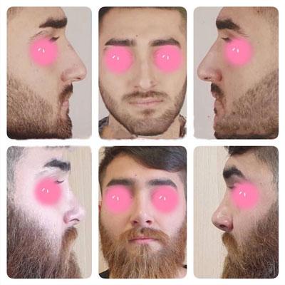 نمونه کار جراحی بینی دکتر اکبرپور4