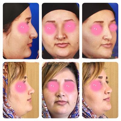 نمونه کار جراحی بینی دکتر اکبرپور2