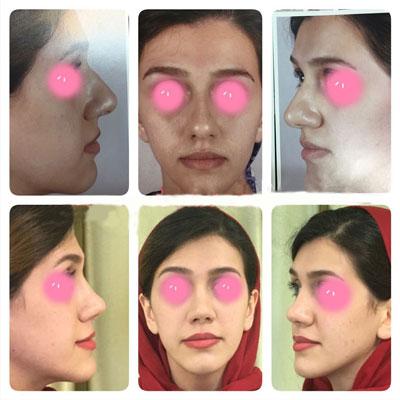 نمونه کار جراحی بینی دکتر اکبرپور3