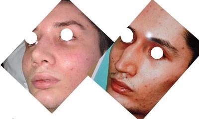 نمونه کار جراحی بینی دکتر خسروشاهی2