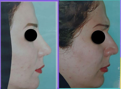 نمونه کار جراحی بینی دکتر حیدری3