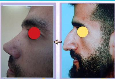 نمونه کار جراحی بینی دکتر حیدری4