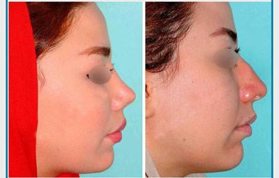 نمونه کار جراحی بینی دکتر نظری2