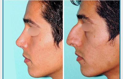 نمونه کار جراحی بینی دکتر نظری4