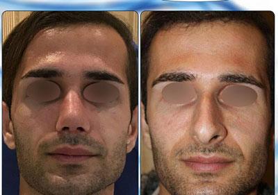 نمونه کار جراحی بینی دکتر نجمی4
