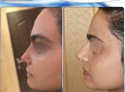 نمونه کار جراحی بینی دکتر نجمی3