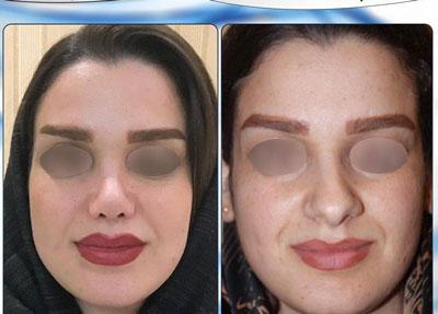 نمونه کار جراحی بینی دکتر نجمی1