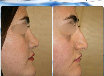 نمونه کار جراحی بینی دکتر نجمی2