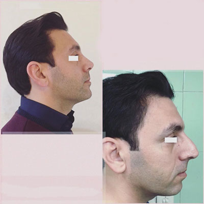 نمونه کار جراحی بینی دکتر یوسف نژاد4