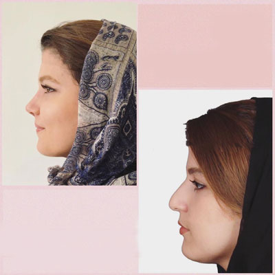 نمونه کار جراحی بینی دکتر یوسف نژاد2