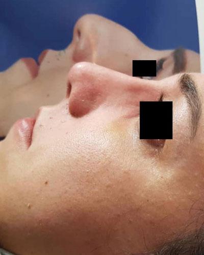 نمونه کار جراحی بینی دکتر پورموسی2
