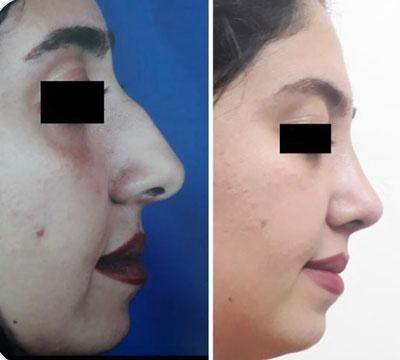 نمونه کار جراحی بینی دکتر پورموسی1