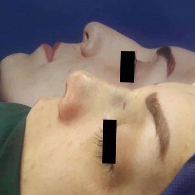 نمونه کار جراحی بینی دکتر پورموسی3