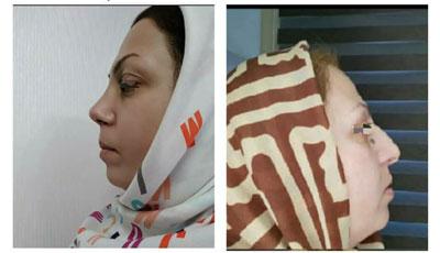 نمونه کار جراحی بینی دکتر واحدی پور3
