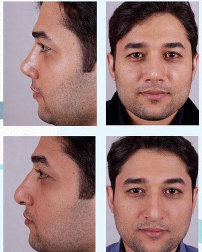 نمونه کار جراحی بینی دکتر فقیه4