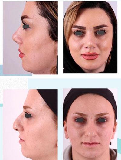 نمونه کار جراحی بینی دکتر فقیه2