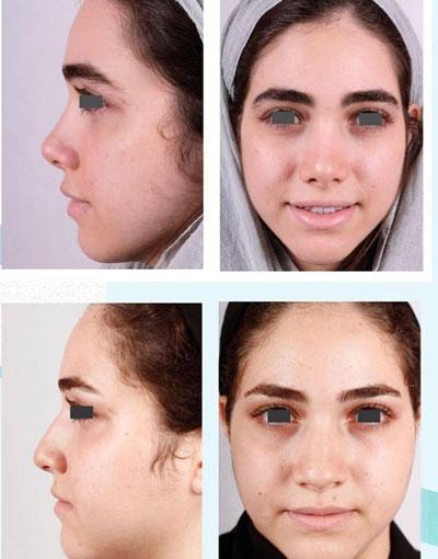 نمونه کار جراحی بینی دکتر فقیه3