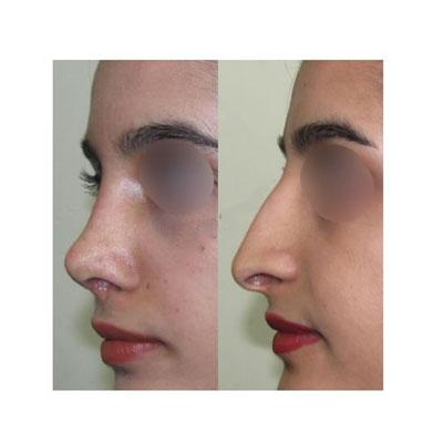 نمونه کار جراحی بینی دکتر فهیم نیا2