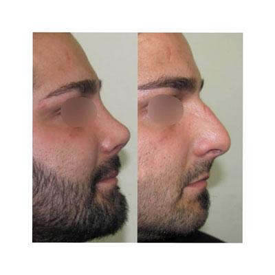 نمونه کار جراحی بینی دکتر فهیم نیا4
