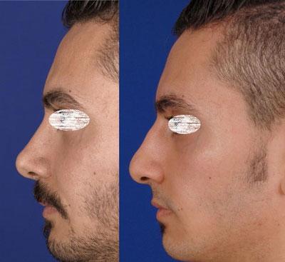 نمونه کار جراحی بینی دکتر ادهم4
