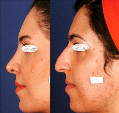 نمونه کار جراحی بینی دکتر ادهم3