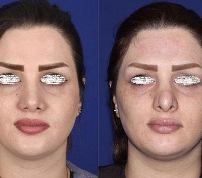 نمونه کار جراحی بینی دکتر ادهم1