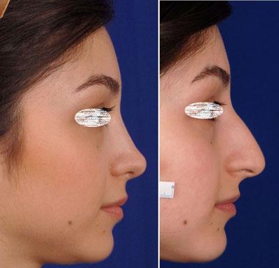نمونه کار جراحی بینی دکتر ادهم2