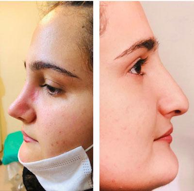 نمونه کار جراحی بینی دکتر جویباری1