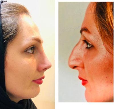 نمونه کار جراحی بینی دکتر جویباری2