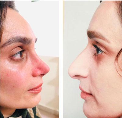 نمونه کار جراحی بینی دکتر جویباری3