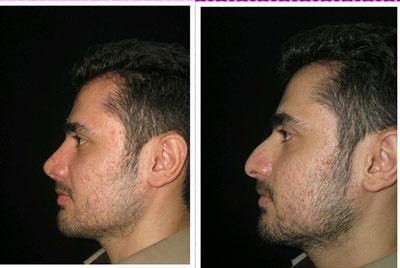 نمونه کار جراحی بینی دکتر خلیلی4